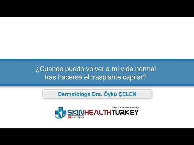 ¿Cuándo puedo volver a mi vida normal tras hacerse el trasplante capilar? - Dra. Oyku Celen