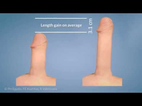 size average penis girth