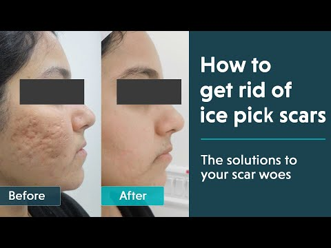 Ice Pick Acne Scars Treatment Reviews And Results Youtube