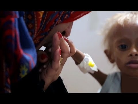 FAMINE ALERT IN YEMEN: Millions Of Children Starving After 3 Years Of Blockade On Food & Medicine.