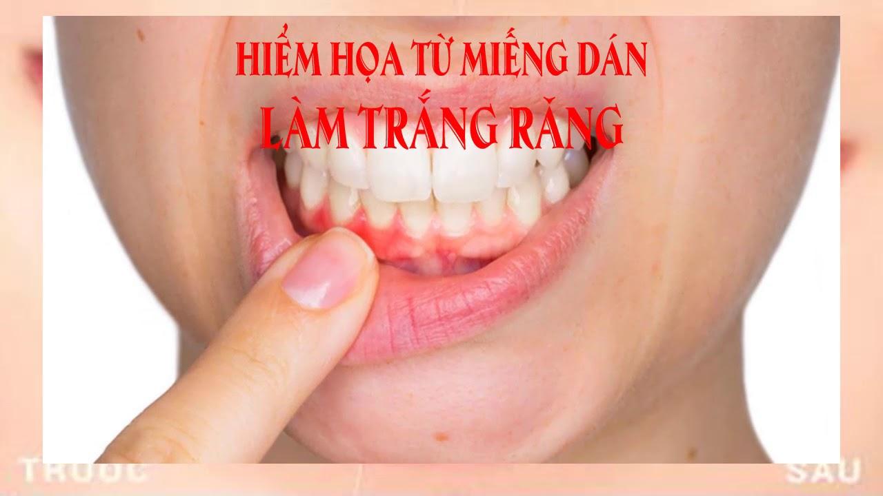 Hiểm họa từ miếng dán làm trắng răng