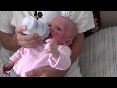 Baby with food allergies drinking Hypoallergenic formula for the first time