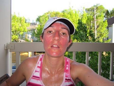 DermTV Why Exercise Makes Your Face Red [DermTV.com Epi #286]