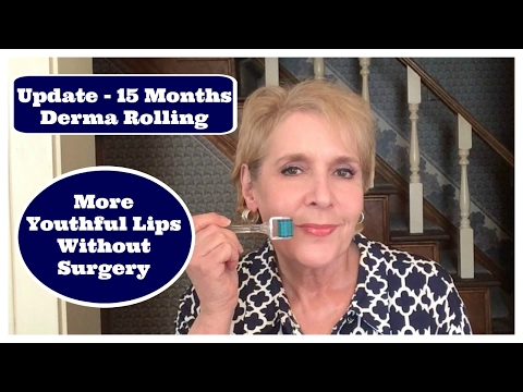 Derma Rolling My Lips at 63~ Anti-Aging Update After 15 Months