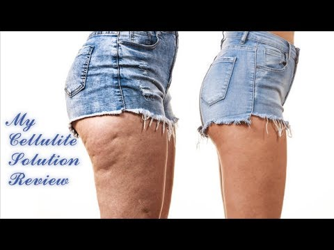 my-cellulite-solution-review-important-notice-about-my-cellulite-solution