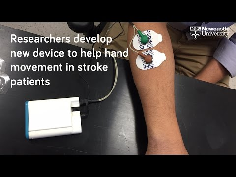 Device to help stroke patients recover hand movement