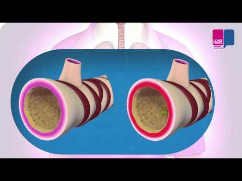 Acute bronchitis - wat gebeurt er in je longen?