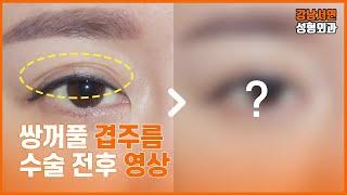 겹주름 쌍꺼풀 수술 리얼 영상 후기 l 강남서연성형외과