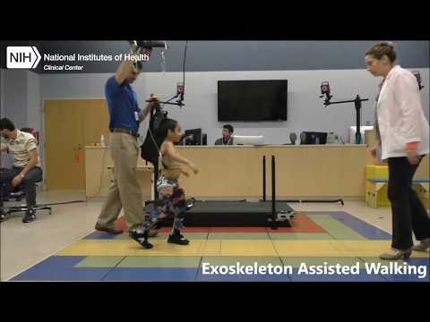 Robotic exoskeleton alleviates crouch gait in children with cerebral palsy