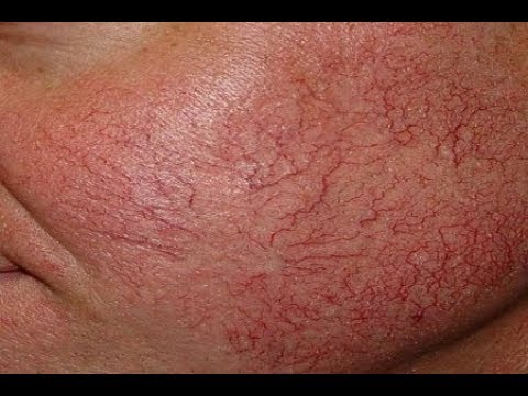 Kılcal damar çatlaması neden olur Doğal tedavisi var mıdır