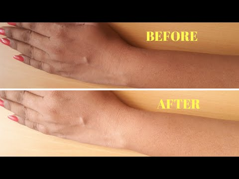 How To Remove Sun Tan From Your Body Instantly | Home remedy