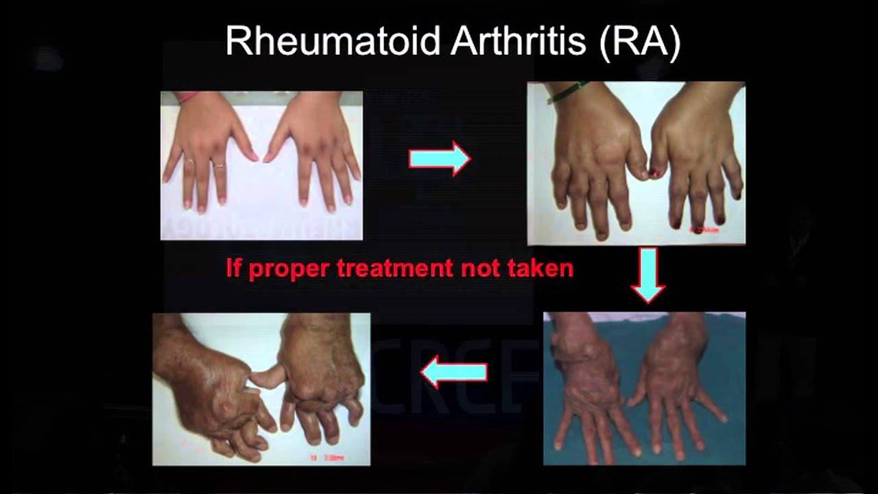az osteoarthritis kezelhető
