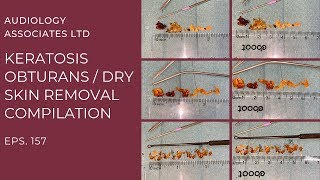 KERATOSIS OBTURANS/DRY SKIN REMOVAL COMPILATION - EP 157