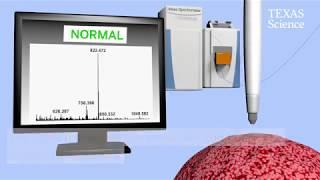 Caneta detectora de câncer entrará em nova fase de testes