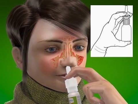น้ำมูกแห้ง เหนียว คัดจมูก พ่น Hypertonic saline nasal spray