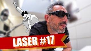 DÉTATOUAGE LASER #17 : ON Y EST PRESQUE ! (MAIS PAS ENCORE)