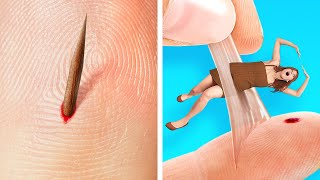 If a SPLINTER Was A PERSON!😼 LIFE-SAVING Hacks For Clumsy People
