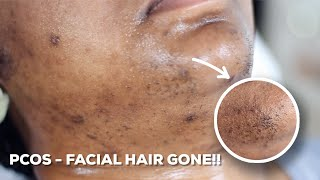 HOW TO WAX YOUR CHIN HAIR AT HOME | DIY Sugar Wax Hair Removal Hack