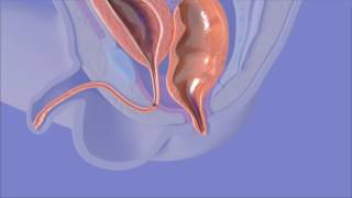 Anorectal Malformation Surgery
