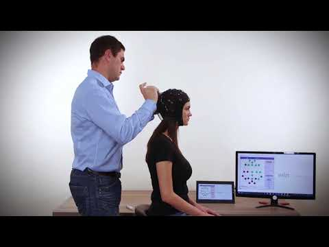 How to mount EEG cap with SMARTING