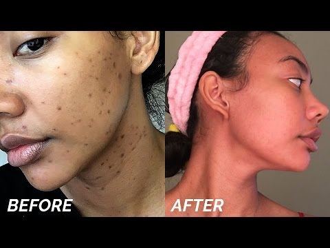HOW TO GET RID OF DARK SPOTS & HYPERPIGMENTATION FAST!!