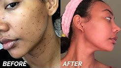 hqdefault - How To Get Rid Of Hyperpigmentation From Acne Fast