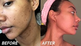 One of Asia Jackson's most viewed videos: HOW TO GET RID OF DARK SPOTS & HYPERPIGMENTATION FAST!!