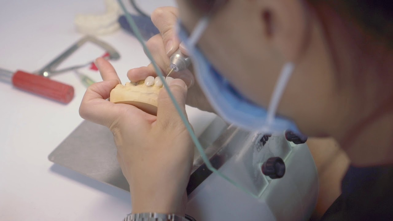 Promo Video: Behind-the-scene of a smile makeover.