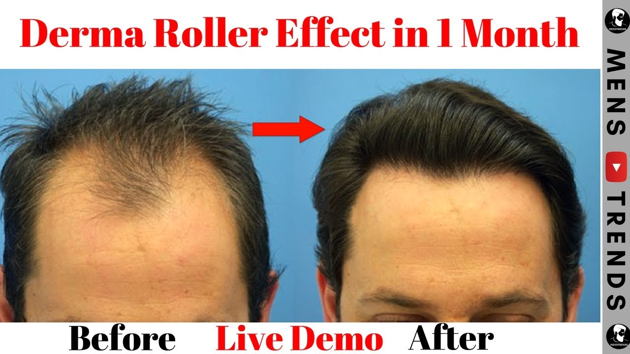 DERMA ROLLER For Hair Regrowth And Hairline How To