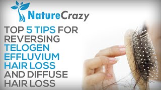 Nature Crazy's Top 5 Tips for Reversing Telogen Effluvium Hair Loss and Diffuse Hair Loss