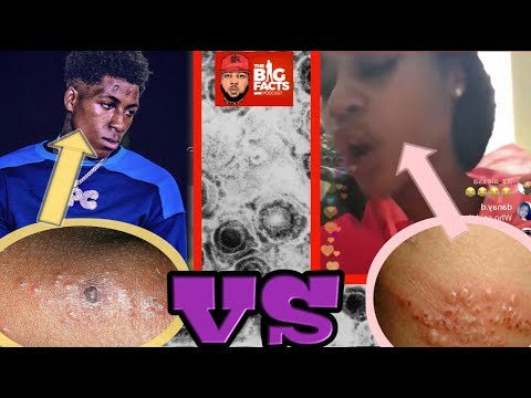 P.2* HERPES In Hip-Hop: NBA YoungBoy INFECTED Jania W/ HERPES On PURPOSE!!??