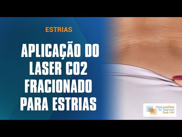 Tratamento para estrias | Laser de CO2 Fracionado DEKA
