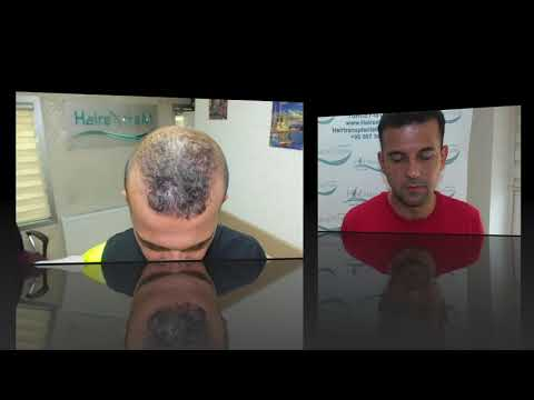 Haydar ASLAN HairextreM hair transplantation center