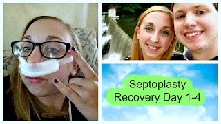 Septoplasty Recovery Day 1-4