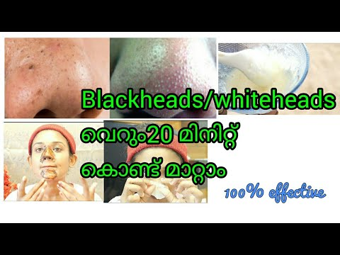 How to remove blackheads / whiteheads at home permanently!!!100% effective