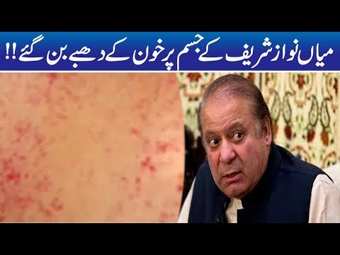 Redness On Nawaz Sharif Body, Critical Health thumbnail