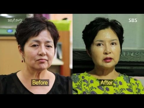 Face Lifting Surgery In Korea With The Best Korean Plastic Surgeron And It's Before And After!!