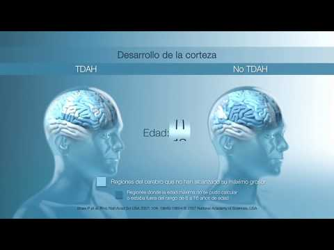 ADHD Mini documentary Psychophysiology of Attention Deficit Hyperactivity Disorder