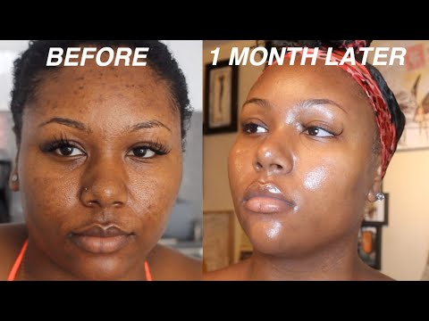 I FADED MY ACNE SCARS + GOT CLEAR SKIN DOING THIS FOR 1 MONTH! VIDEO PROOF | SKINCARE ROUTINE