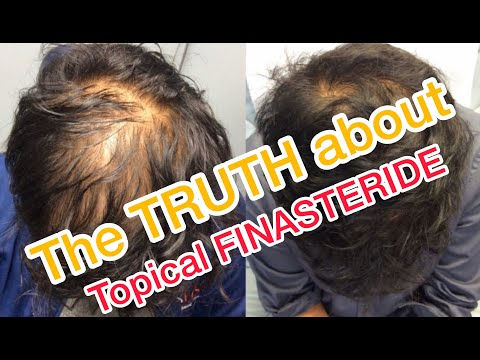 topical-finasteride-minoxidil-results-after-6-months