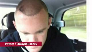 Wayne Rooney reveals hair transplant results