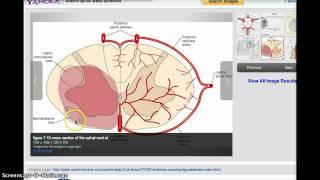 ANTERIOR SPINAL ARTERY SYNDROME VZ MEDIAL MEDULLARY