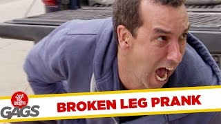 Leg Snapped in Two by Construction Worker !