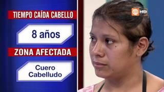 Alopecia por Dermatitis Seborreica Crónica