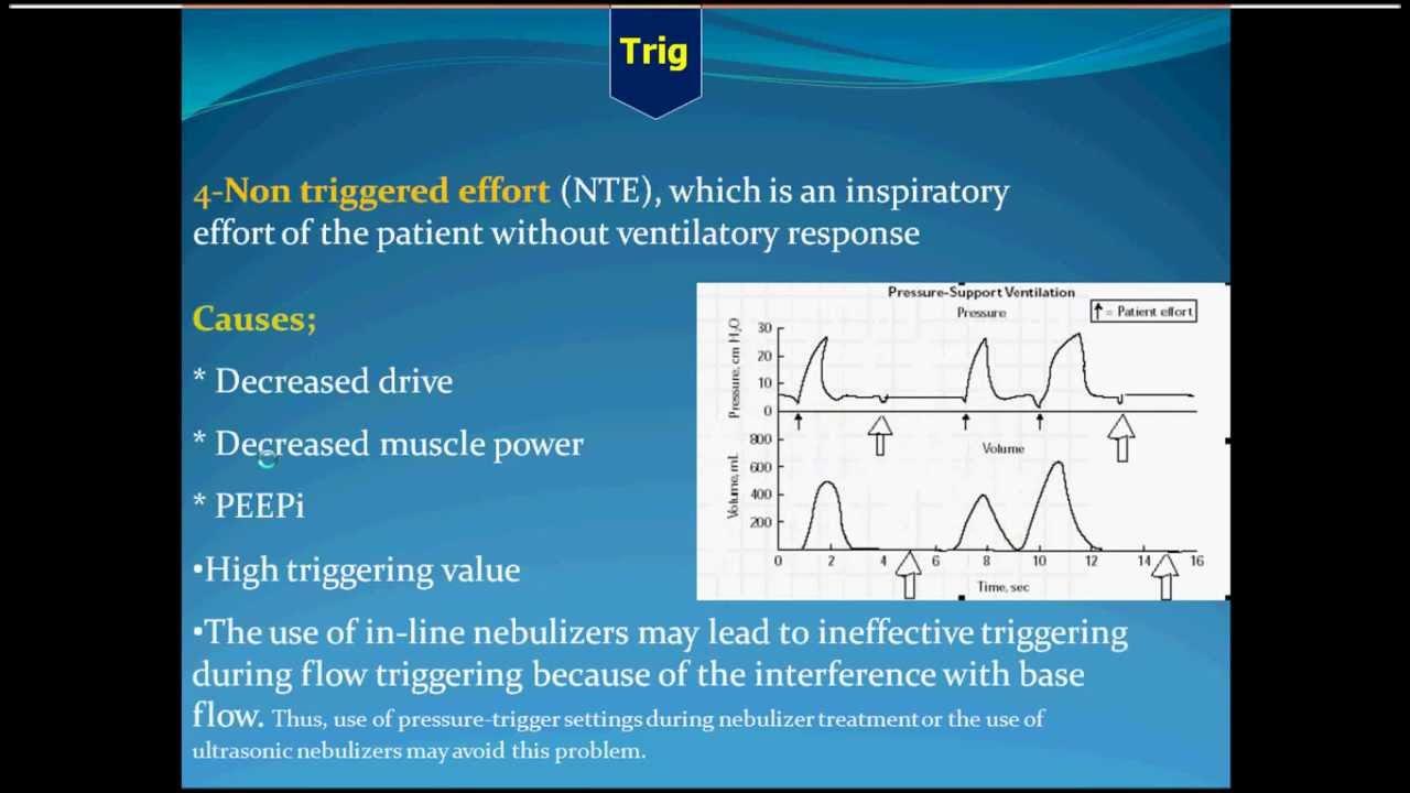 mechanical ventilation -18 - v. adjustment triggering (english