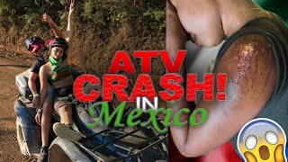 We got into a BAD Accident!!  (Must Watch!!!) | Ep. 6