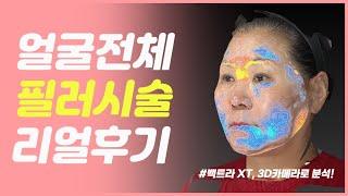 얼굴전체 필러 후기(시…