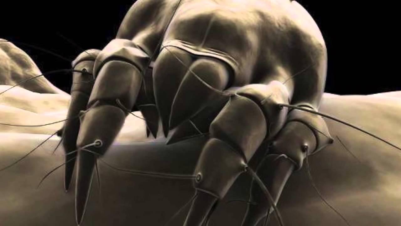 Acari della polvere youtube for Acari polvere