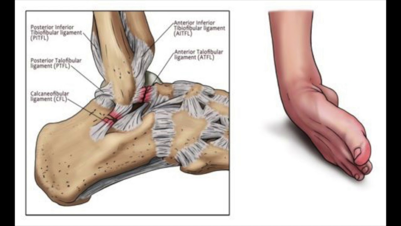Lateral Ankle Sprains Anatomy Overview - YouTube