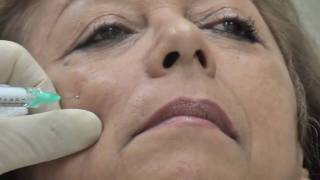 LOOK YOUNGER IN MINUTES!!!!  Dr. Nowak fillers seminar live demonstration testimonial